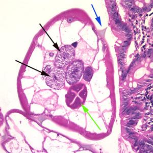 enterobius vermicularis éjszaka)