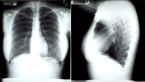 tüdőrák okai)