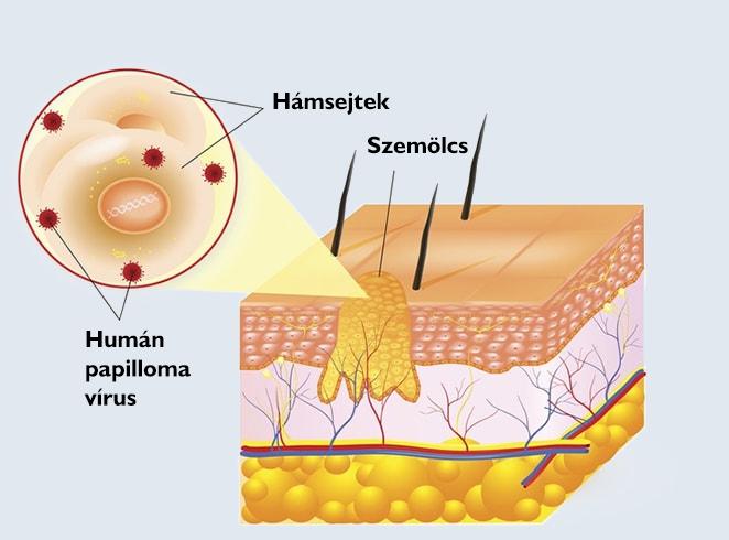 Hogyan lehet megszabadulni a szeméremajkakon lévő papillómáktól - Melanóma - April