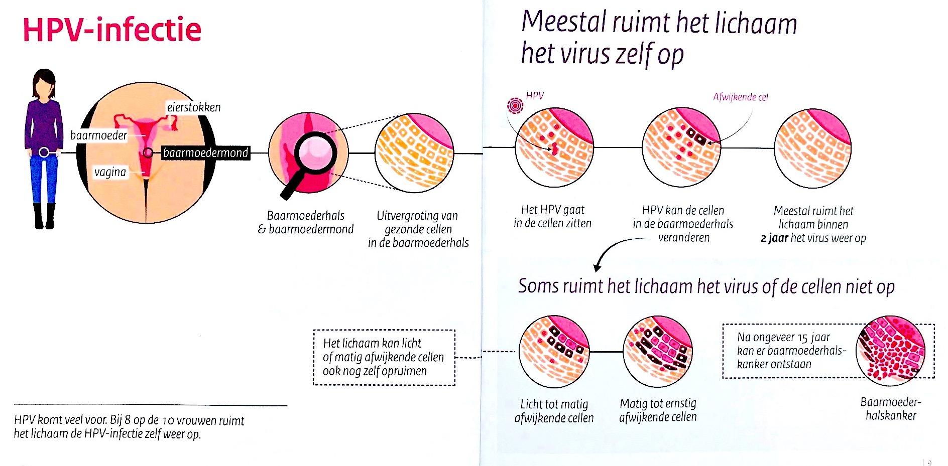 humán papillomavírus magas kockázatú szonda