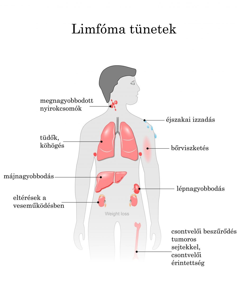 Limfóma | harsfavirag.hu