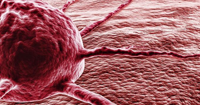 szarkóma rákos halálozási arány hpv pozitív rákkockázat