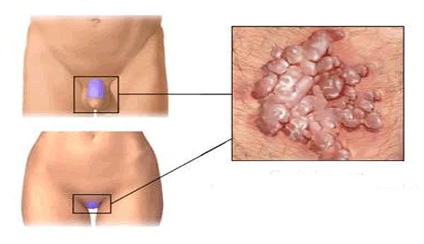 hogy az anthelmintikus gyógyszerek hogyan befolyásolják a magzatot bélméregtelenítő dr schulze s