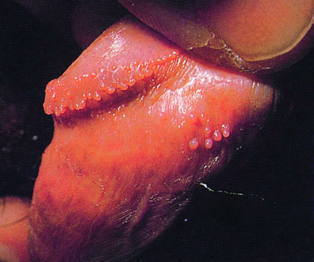 hirsutoid papilloma férfiaknál