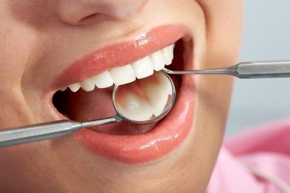 hpv száj- és torokrák