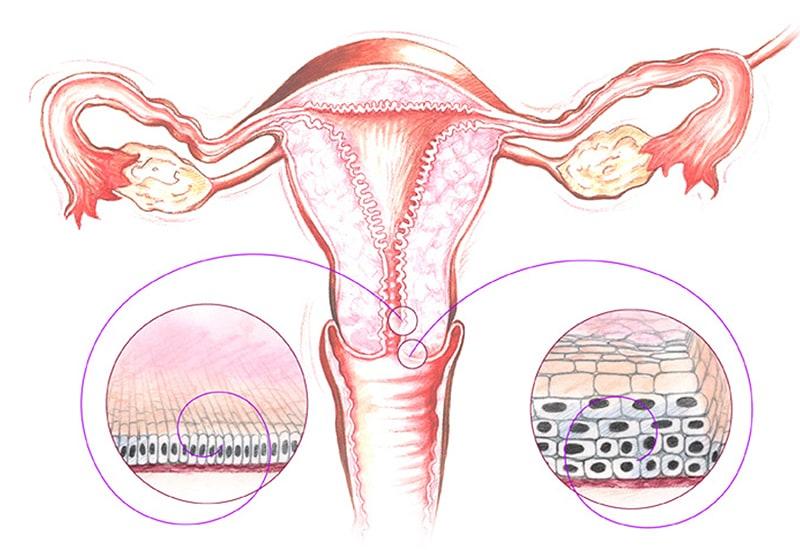 papilloma a méhnyak tüneteiben és kezelésében