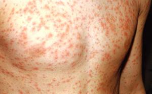 A szexuális úton terjedő betegségek és tüneteik