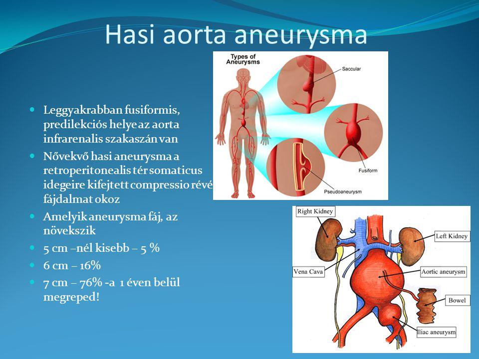 rák és hasi aorta aneurizma
