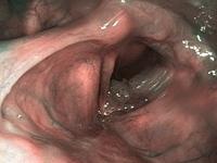 gége papilloma terápia