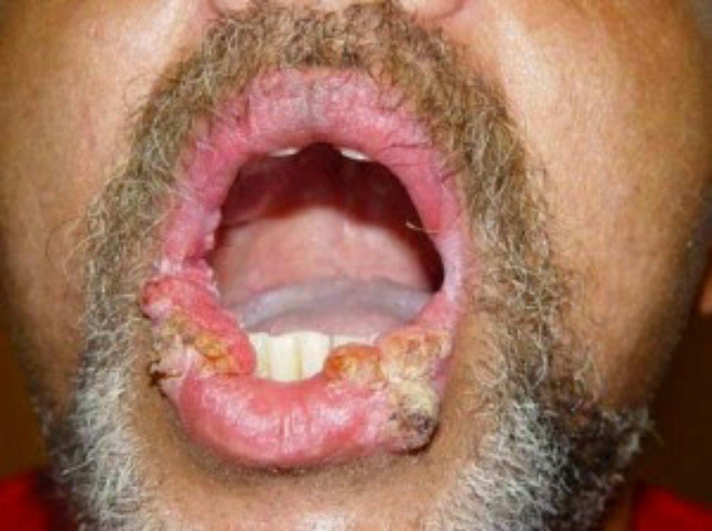 A gumi papilloma: a fejlődés okai és jellemzői - Moles October
