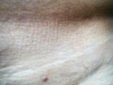 Hpv szemolcs kialakulasa, Tratament giardia doza unica, Bélféreg kiirtasa hazilag