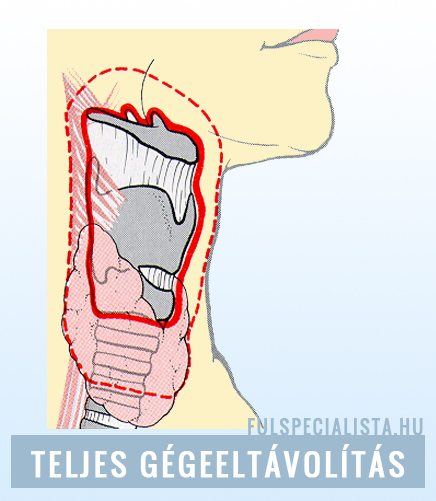 szemölcsök kezelést okoznak pinworms a nemi szervek területén