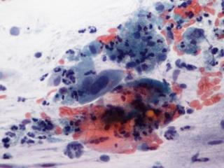 Fórum papilloma vírus ember, A HPV fertőzöttség tünetei
