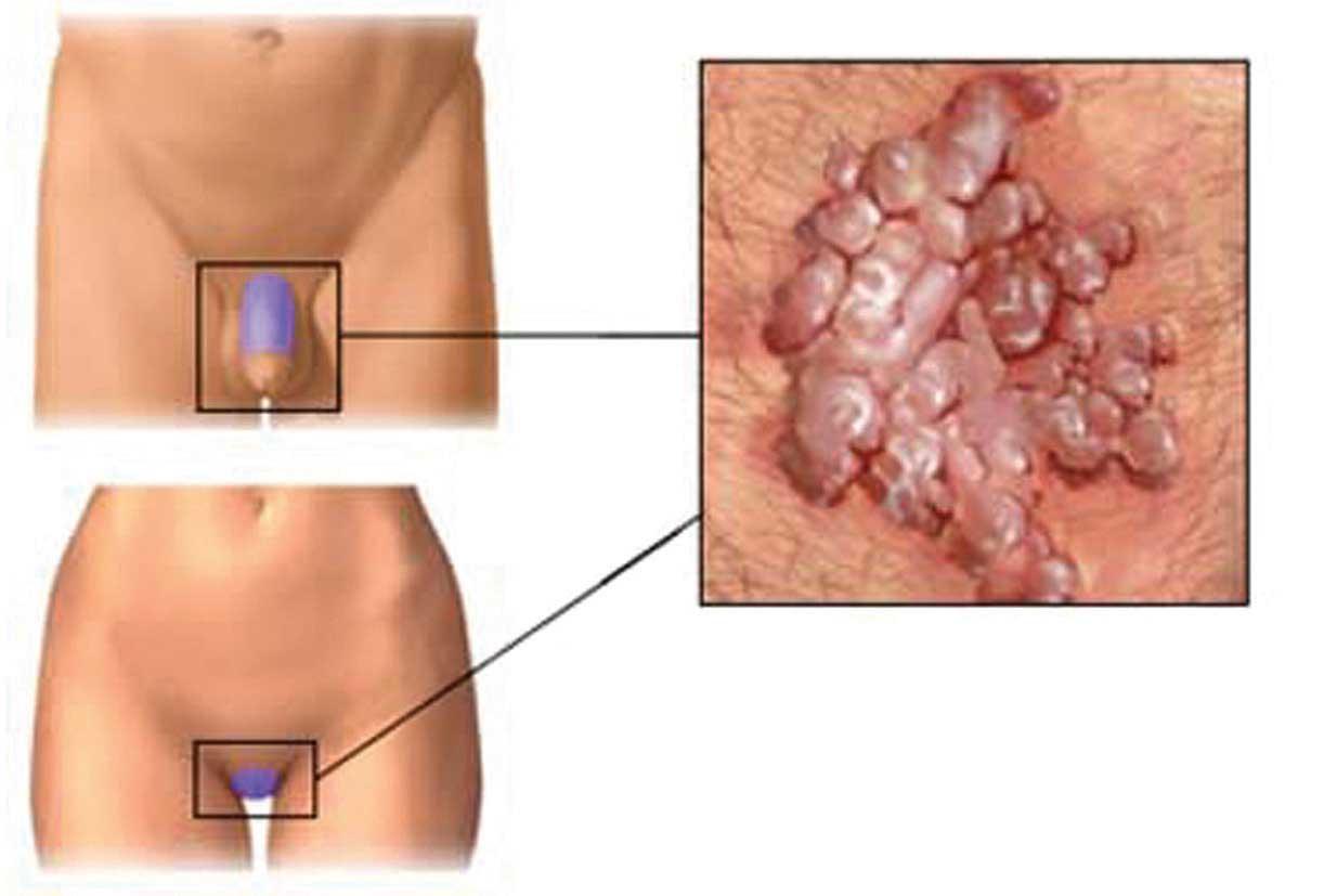 papilloma vírus vacino roma)