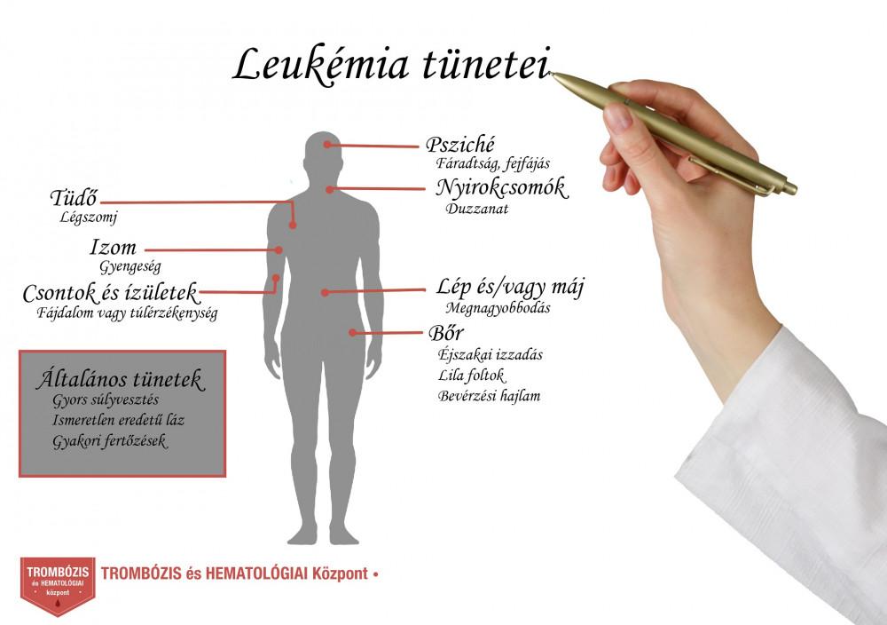 Akut leukémia tünetei és kezelése