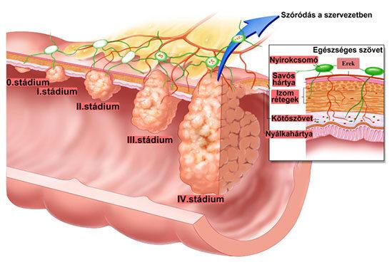 Vastagbélrák tünetei és kezelése