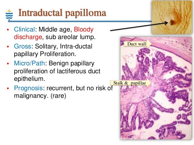 intraductalis papilloma ppt)