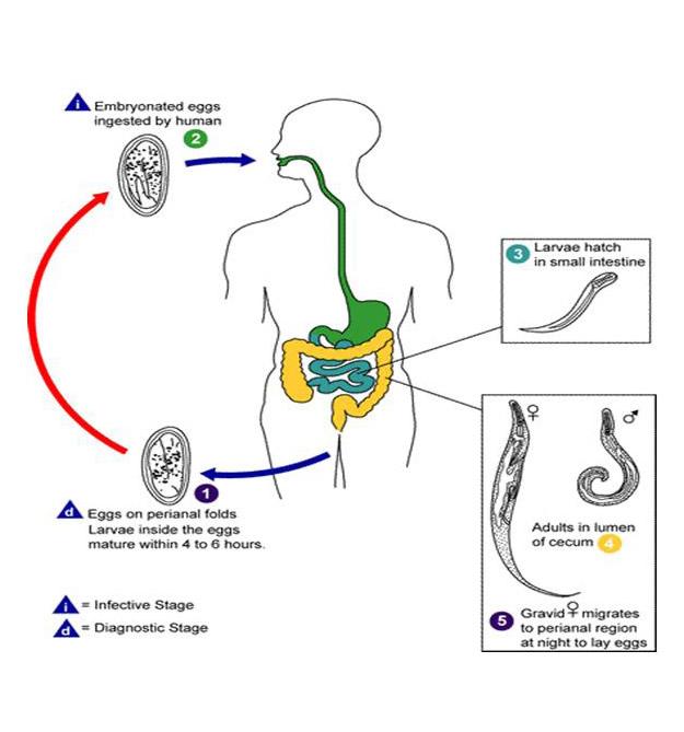 Testhosszúságú pinworms