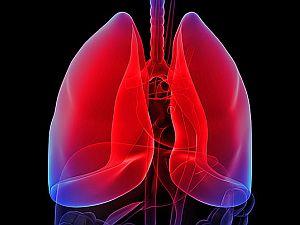 a tüdőrák okai terhességben gyakori vestibularis papillomatosis