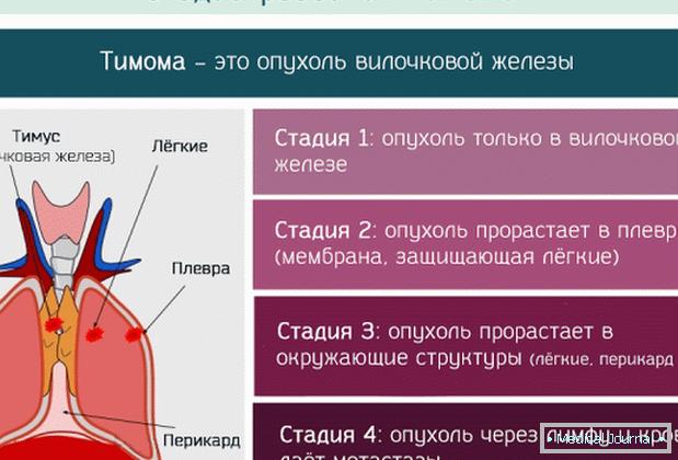 neuroendokrin rák thymus