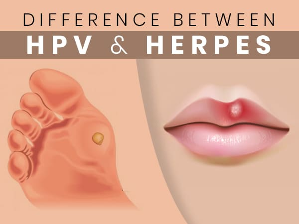 hpv és herpesz tünetei)