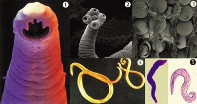 sta su paraziti u organizmu neoplasm papilloma