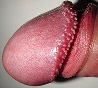 tejes szemölcsök parazita fertőzés jelei emberekben