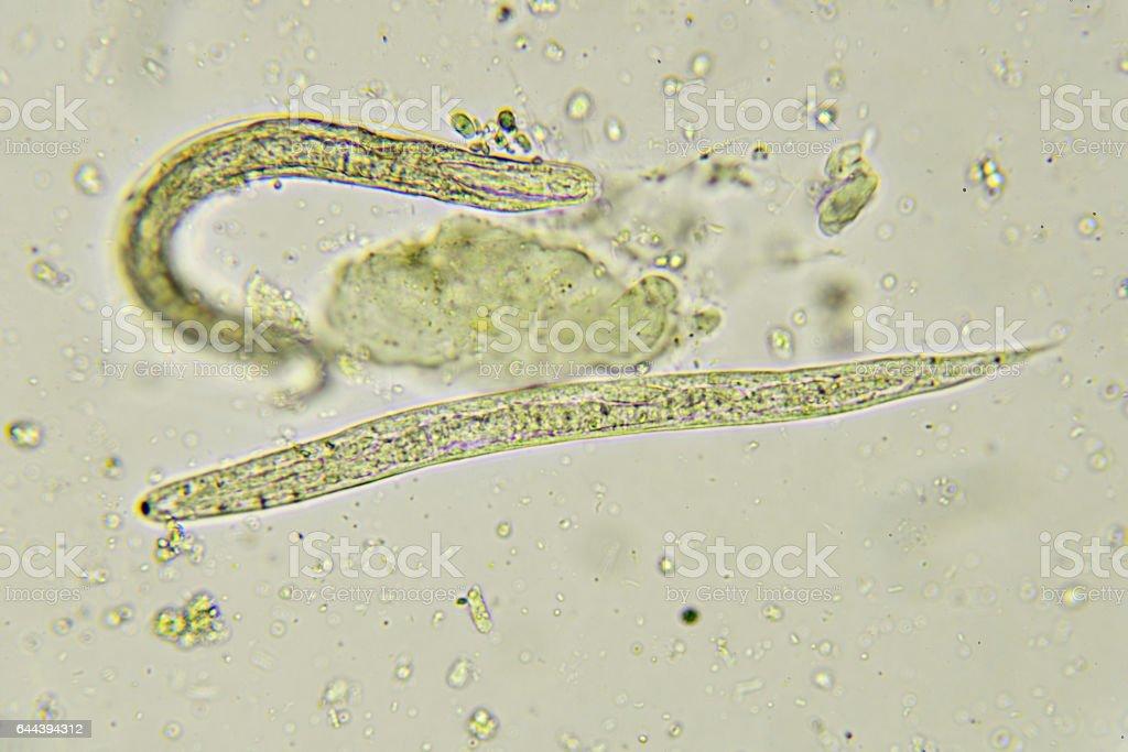 Pinworms gyermekek kezelésében