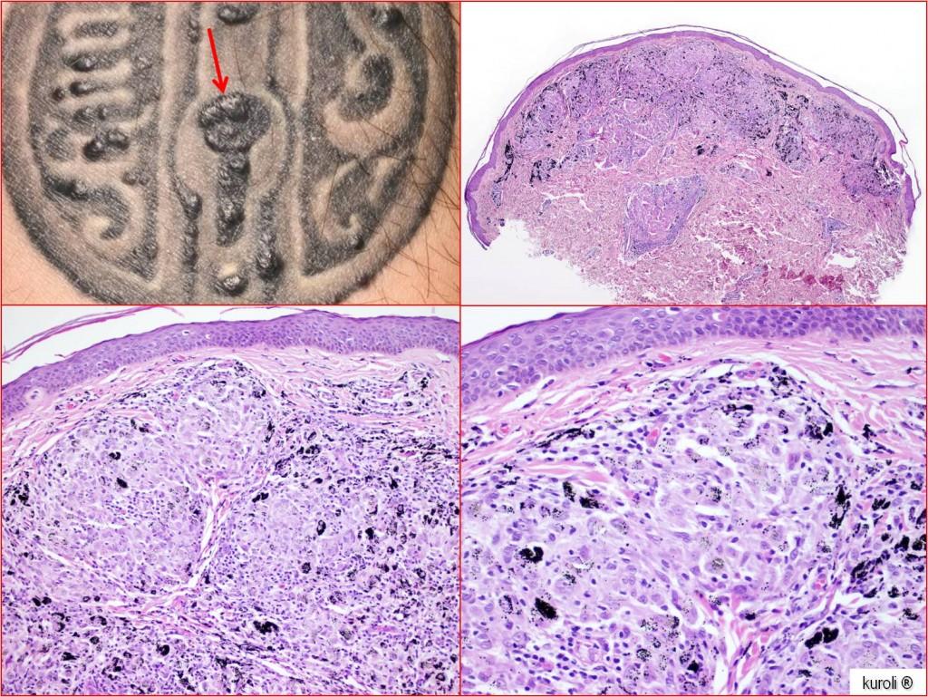 szabálytalan papillomatosis acanthosis a vakbél rosszindulatú daganata