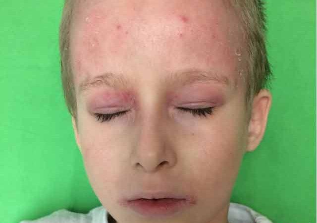 dermatitis gyermekek