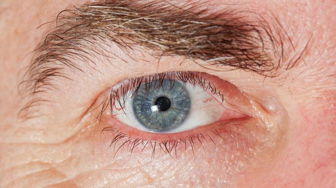 fertőzött férgek szeme)