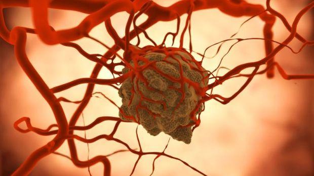 Daganatos betegségekről