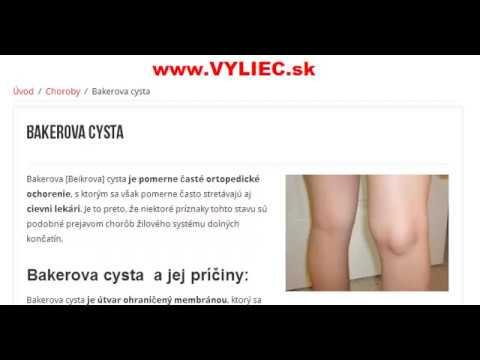 condyloma Omszkban