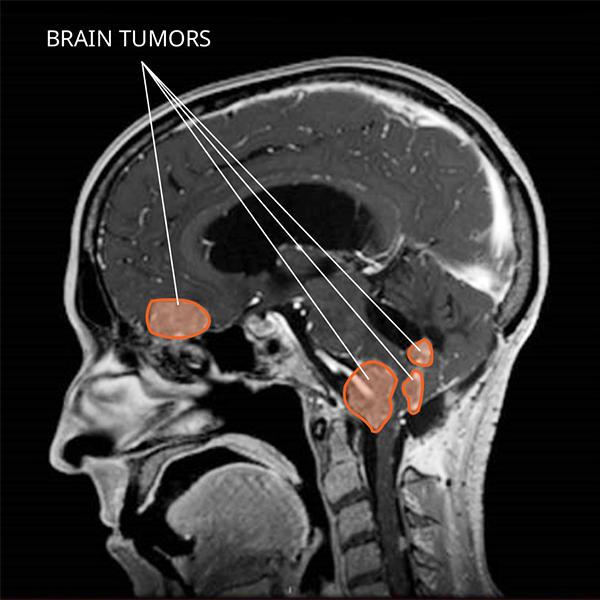 papilloma choroid plexus tumor)