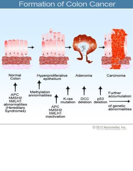 várható élettartam peritonealis rák gyógymódok giardia és paraziták ellen
