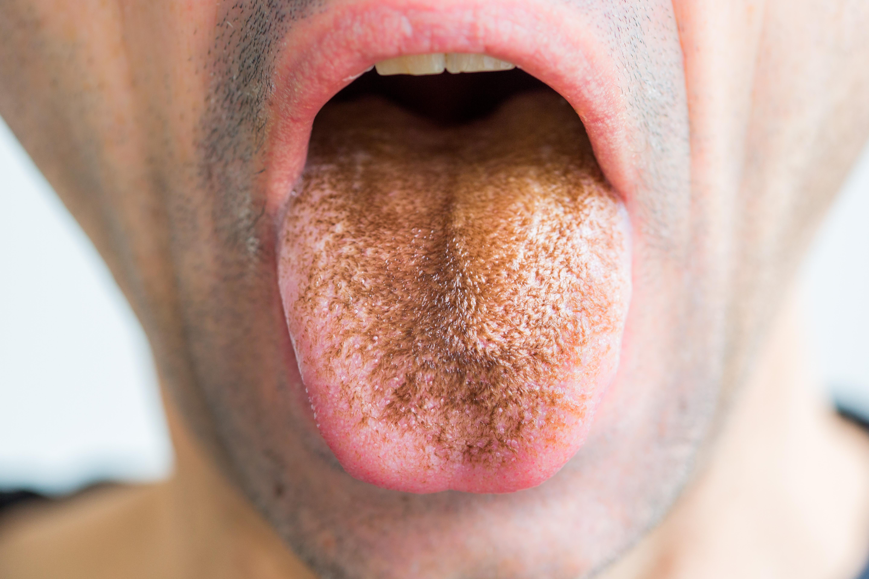 száj szemölcs gyógyszer