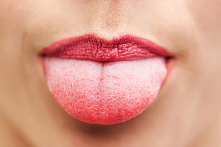 a nyelv papilloma