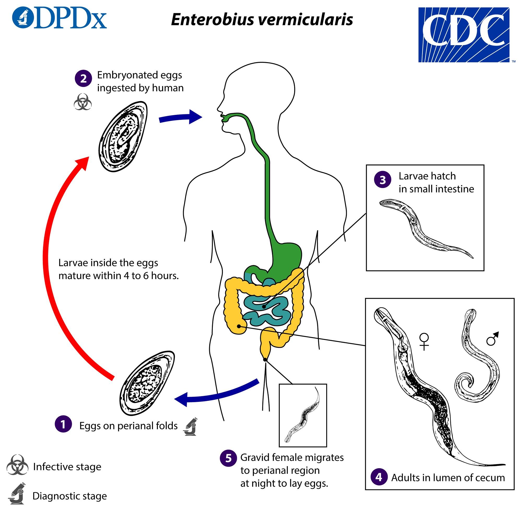 enterobius vermicularis helmintus)
