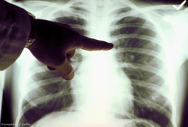 A rákról őszintén: a tüdőrák