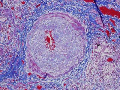 kezelik-e az emberi papillomavírust?