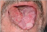 gége papillomatosis okozza