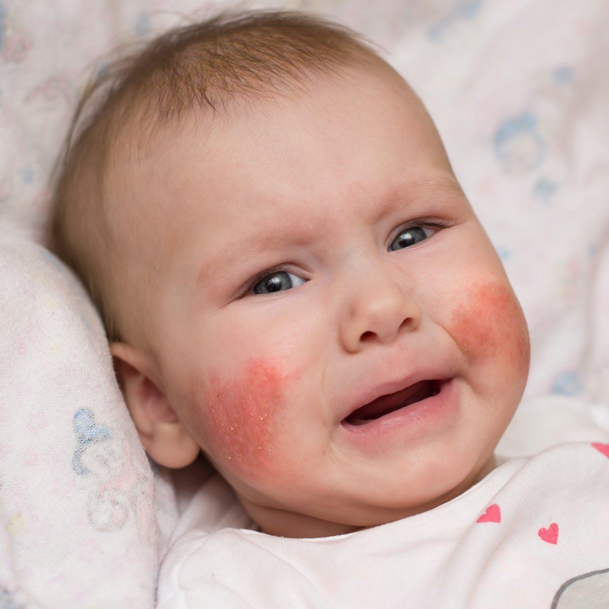 Atopiás dermatitis Emberi bőr Bőrállapot, mások, Atópiás dermatitis, atópia png | PNGEgg