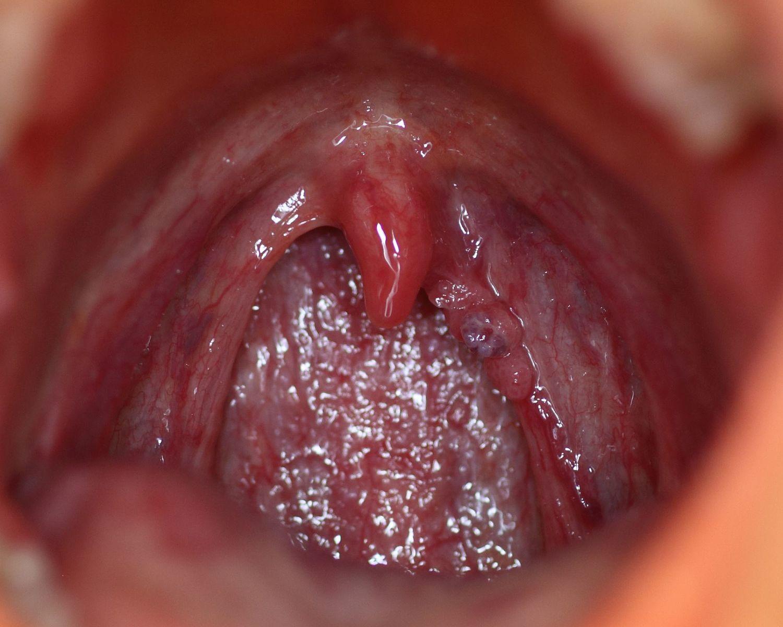 A Chlamydia-fertőzés