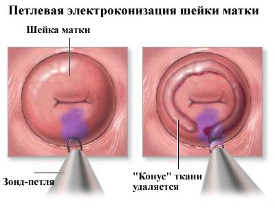 A tüdőrák kezelési lehetőségei | harsfavirag.hu