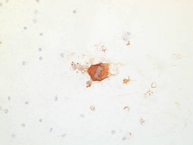 endometrium rák patofiziológiája