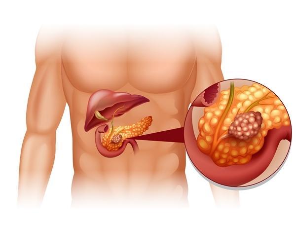 testrák tünetei
