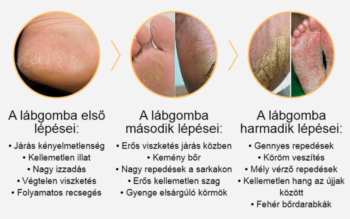 a legjobb dermatológiai vélemények)