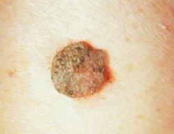 condyloma egy nő eltávolításakor apró paraziták az emberi ürülékben