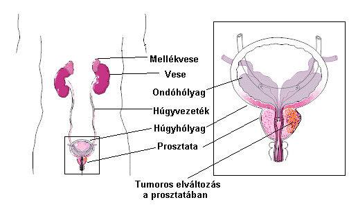 A prosztatarák kezdeti tünetei)