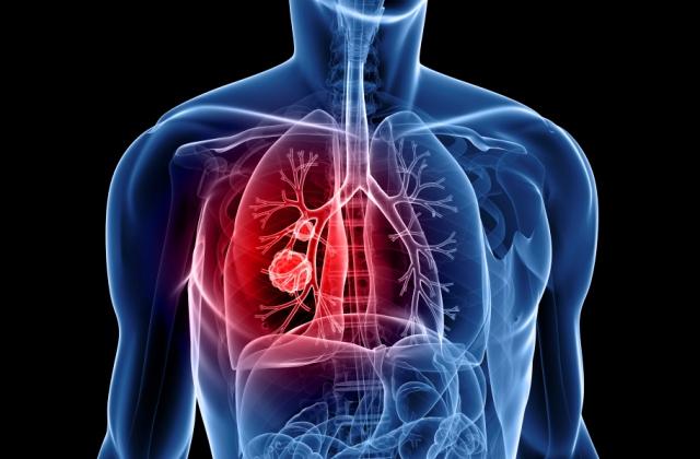 Tüdőrák téma